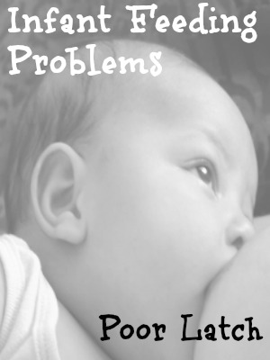 Infant Feeding Problems Poor Latch