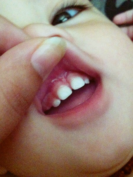 Our Experience With Tongue And Upper Lip Tie Revision